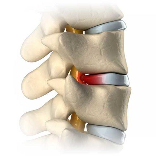 spine-diagnosis-1